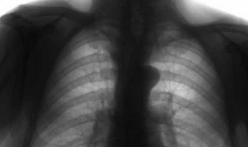 Прием статинов грозит заболеваниями легких