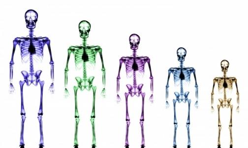 У полных кости шире