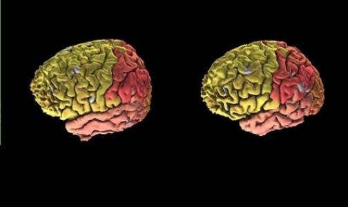 Создан первый полный цифровой атлас мозга
