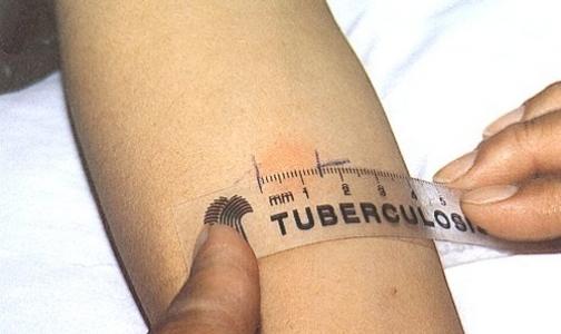 Разработана новая система диагностики туберкулеза