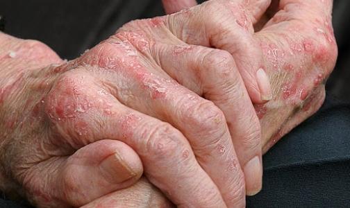 Работу сердца можно оценить по состоянию кожи