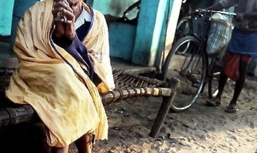 В Индии растет заболеваемость проказой
