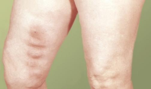 Новый препарат защитит от венозного тромбоза