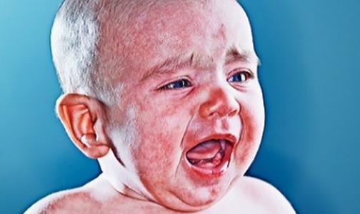 Почему двухлетнего Максима, покрывшегося коростой с головы до пят, не лечили от аллергии