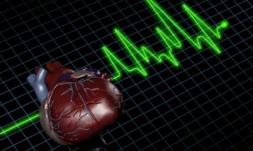 Cколько стоят инфаркты миокарда в России
