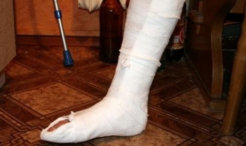 Летом тяжесть детских травм увеличивается