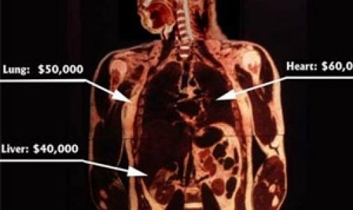 ВОЗ подсчитал, как часто в мире продаются человеские органы