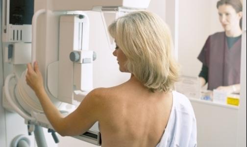 Выявлять рак груди в Петербурге будут на новых маммографах