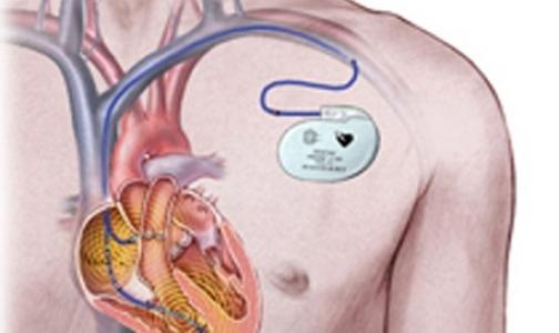 Петербургские больницы больше не смогут брать деньги с пациентов за кардиостимуляторы
