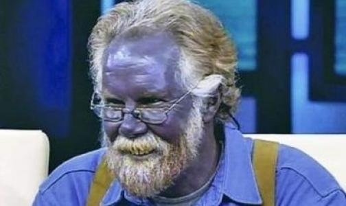 Самолечение сделало мужчину фиолетовым (видео)