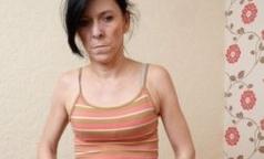 Врачи вернули молодость 16-летней девушке с синдромом «Бенджамина Баттона»