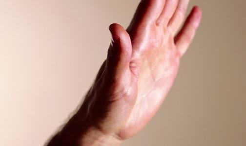 В США мужчина судится с врачом из-за продлившейся восемь месяцев эрекции
