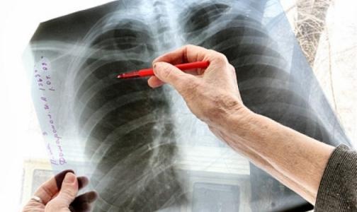 Прокуратура хочет заставить петербурженку с заразной форма туберкулеза лечиться