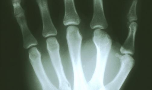 Прокуратура нашла пять из 38 неработающих рентгенаппаратов в поликлиниках