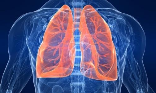 Петербуржцы с муковисцидозом не рассчитывают на пересадку легких