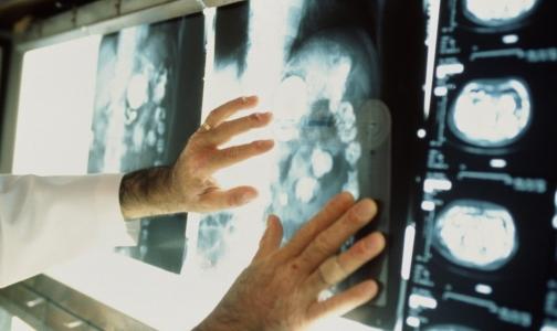 Сколько россиян умирают от рака в первый год после установления диагноза