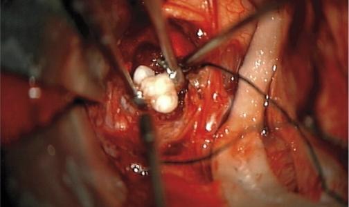 В мозге младенца обнаружили опухоль с зубами