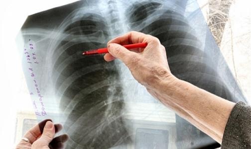В России создадут единый регистр больных туберкулезом
