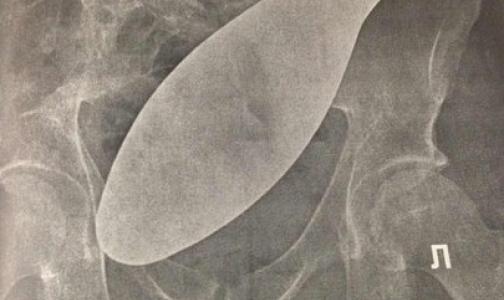 В петербургской больнице обнаружили «хирургическую подошву» в животе бывшего заключенного