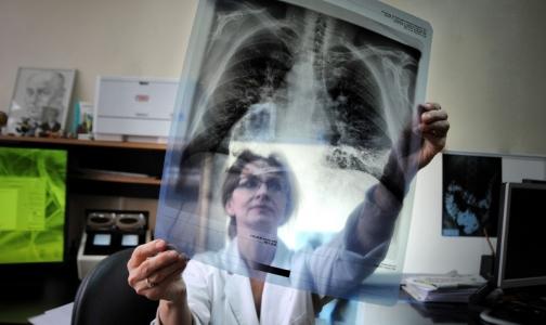 ВОЗ планирует полностью ликвидировать туберкулез в 33 странах мира, но не в России