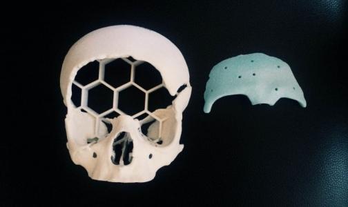В Петербурге подростку создали новый череп с помощью трансплантата