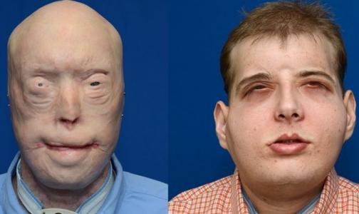 Американские хирурги сделали сложнейшую пересадку лица