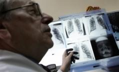 Мигранты обследуются на туберкулез лучше, чем петербуржцы