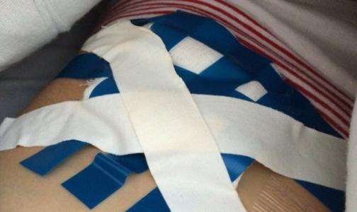 Пациентка подаст в суд на больницу из-за перевязок изолентой
