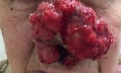 Почему пациенты выращивают опухоли на лице