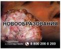 Новые эскизы картинок, которыми будут пугать курильщиков: Фоторепортаж