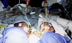 В Швейцарии разделили самых маленьких сиамских близнецов