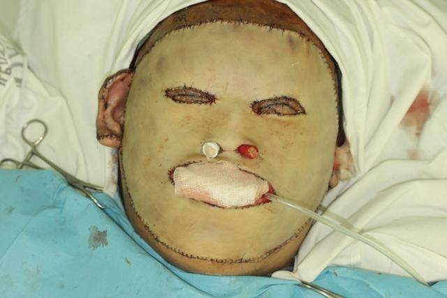 Россиянину пересадили лицо с помощью кожи на животе