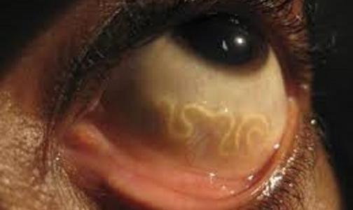 Врачи удалили из глаза россиянки 8-сантиметрового червя-паразита