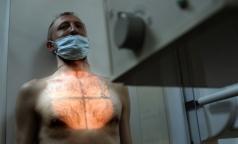 Жители 7 районов Ленобласти чаще других болеют туберкулезом
