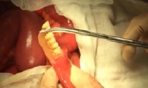 Петербургские хирурги прооперировали пациента, проглотившего вставную челюсть