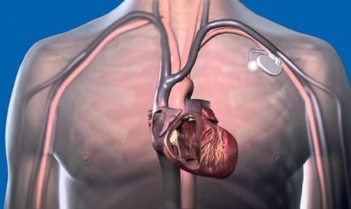 Впервые в Петербурге пациенту имплантируют «умный» дефибриллятор