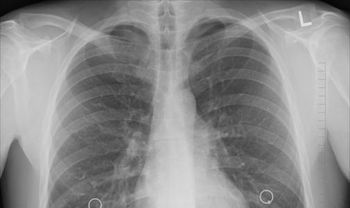 Минздрав: смертность от туберкулеза снизилась почти в 4 раза