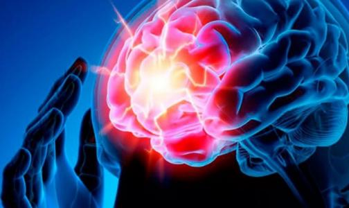 Петербургский невролог: Чтобы спасти человека с инсультом, действуйте быстрее - «время = мозг»