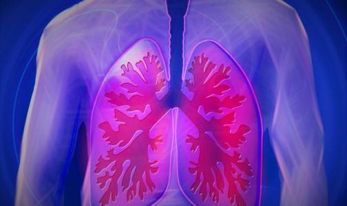 В Верховном суде впервые разъяснили, как через суд отправлять пациентов с туберкулезом на лечение
