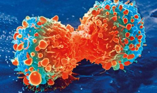 Ученые: Один ген помогает раковым клеткам долго оставаться незамеченным