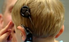 Российские дети хуже американских? В РФ разрешается возвращать глухим слух опасными устройствами