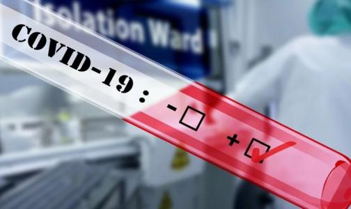 «Вектор» зарегистрировал тест на определение иммунитета к коронавирусу