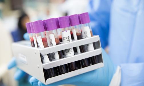 Биологи: Ген, отвечающий за развитие рака, может запускать регенерацию сердца