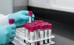 Росздравнадзор: Положительный тест на антитела может быть связан не только с COVID-19