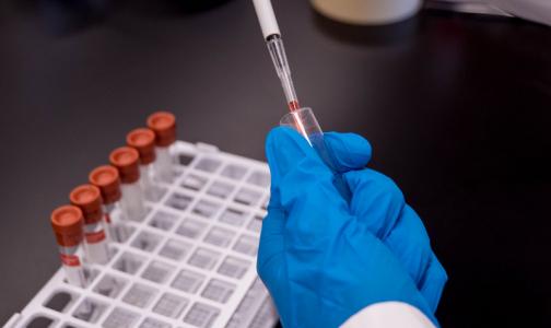 Токсиколог: В НИИ скорой помощи за год поступает не более пяти пациентов с отравлениями «ингибиторами холинэстеразы»