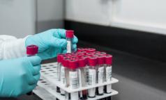 «Палочка Коха у каждого третьего». Фтизиатры прогнозируют рост заболеваемости туберкулезом в России и предлагают сдать тест