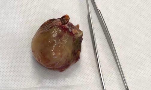 В Елизаветинской больнице впервые экстренно прооперировали пациента с опухолью на сердце
