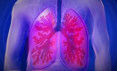 В Роспотребнадзоре объяснили, какими бывают внебольничные пневмонии