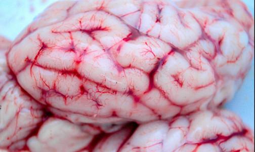 Врачи клиники «Шарите» раскрыли механизм проникновения COVID-19 в мозг