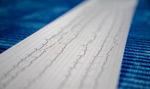 Петербургский кардиолог рассказал, когда женщины рискуют умереть после перенесенного инфаркта больше мужчин